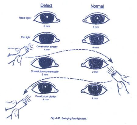 Diagram Pupillary Light Reflex Diagram Get Free Image